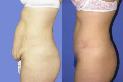 Tummy Tuck Michigan - Abdominoplasty Surgery - St Clair Shores