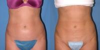 Abdominal Liposuction Photo
