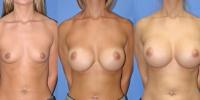 Round Saline Implants