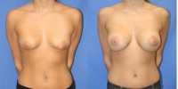 Silicone gel breast implants