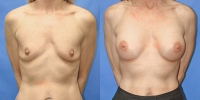 Breast Augmentation Photo