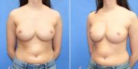Breast Correction - Revision - Photos