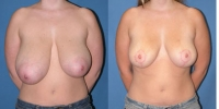 Breast Lift Surgery - Mastopexy Photo