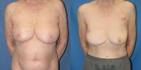 Breast Reconstruction Surgery Photos