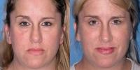 Eyelid Lift Surgery - Blepharoplasty Patient