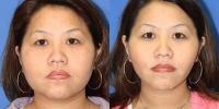 Face Liposuction Patient