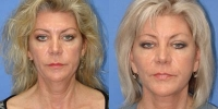 Facial Rejuvenation Before and After