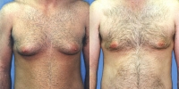 Gynecomastia - Male Breast Reduction Surgery Patient