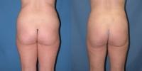 Hip Thigh Liposculpture Photos