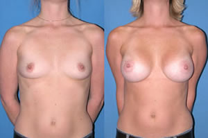 breast-augmentation-picture