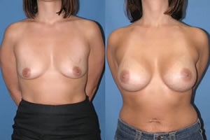 breastaugmentation-patient